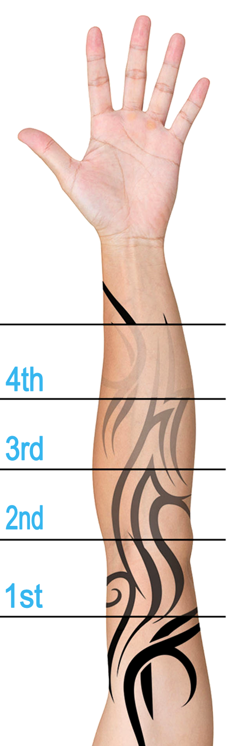 Cheap Laser Tattoo Removal in Plymouth Devon
