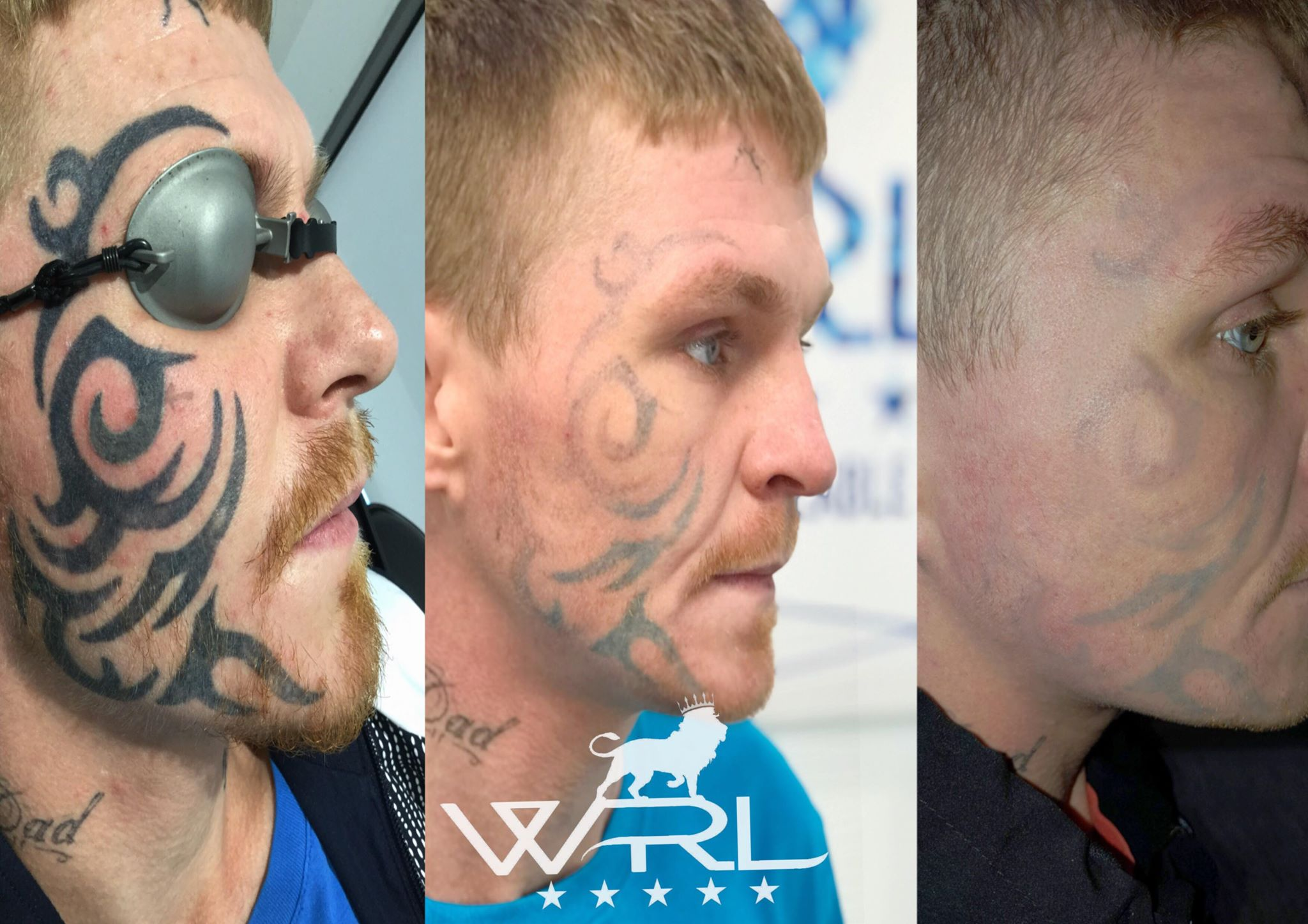 Laser facial tattoo removal whiteroom laser ltd for Tattoo removal lasers