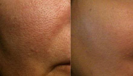 Laser Pigmentation Removal & Reduction in Plymouth