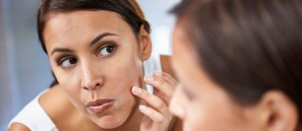 Acne Treatment in Plymouth