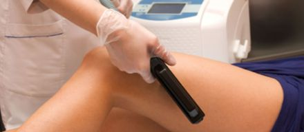 Red Vein Removal in Plymouth, South Devon