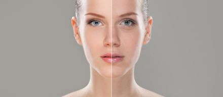 Skin Rejuvenation in Plymouth, South Devon