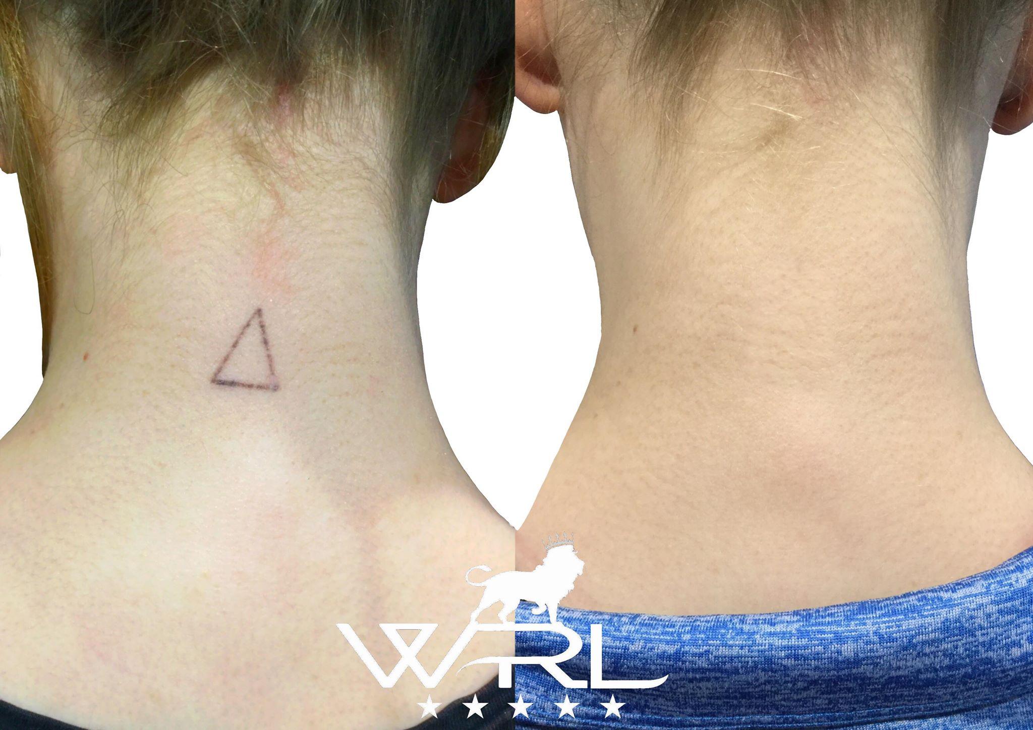 Laser Tattoo Removal, Neck Tattoo - Whiteroom Laser Ltd