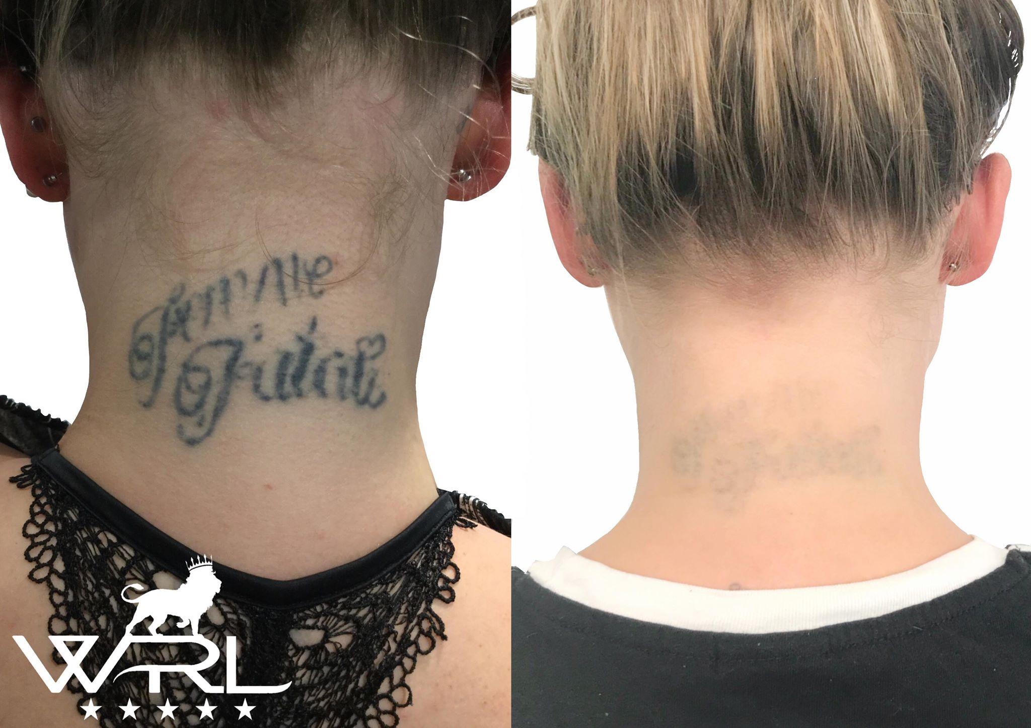 Tattoo Removal, Neck Tattoo - Whiteroom Laser Ltd